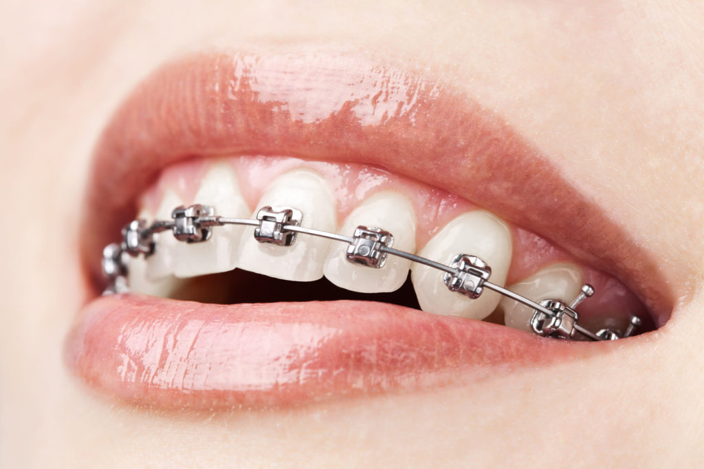 what is an orthodontist encino?