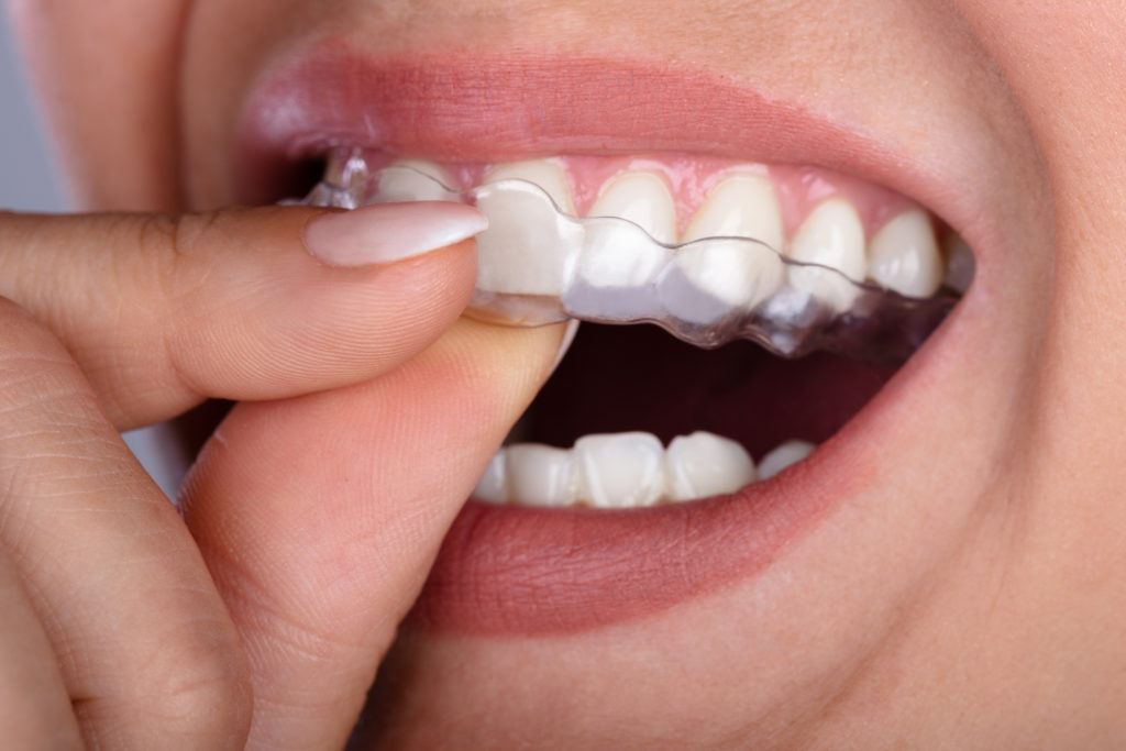 where are the best clear braces encino?