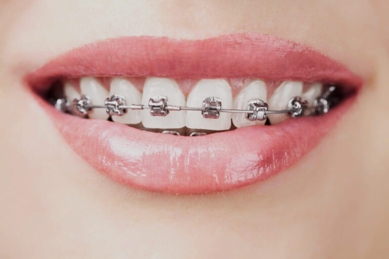 braces orthodontist