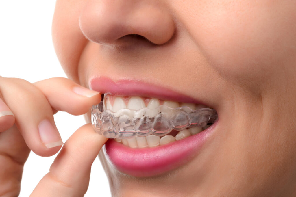 Where is Invisalign Woodland Hills?